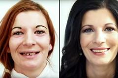Parodontitída je vec seniorov. Omyl!