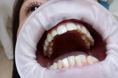 Dobudovanie kosti pre zubný implantát