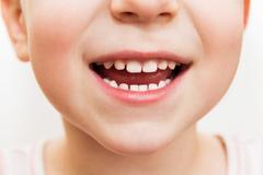 Plombovať mliečne zuby?