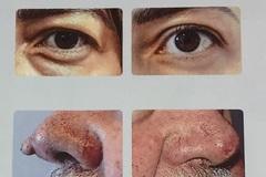 Neinvazívna bezdotyková okuloplastická chirurgia – VIKOM, s. r. o., prvé žilinské očné centrum