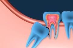 Problémové zuby múdrosti