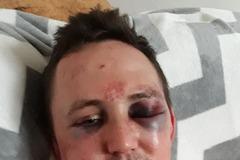 Kuciakovho brata Jozefa zbili: Takýto odkaz poslal z nemocnice