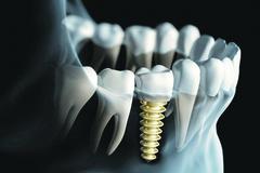 Ulomený či vyrazený zub na úsmeve a nálade nepridá